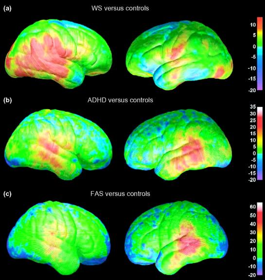 Adhd Brain Differences Stuff4educators Com